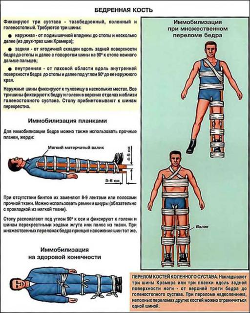 Фиксация суставов при переломе бедра