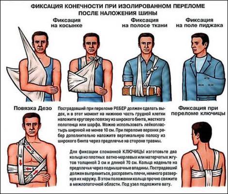 наложение шины при переломе плечевого сустава